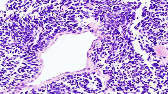 Radioterapia anche per il microcitoma (SCLC) in malattia estesa (ED)?