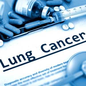 radioterapia cancro del polmone
