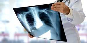 oncologia polmonare