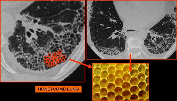 "nodulo in ""honey comb lung"""