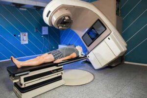 radioterapia mediastinica