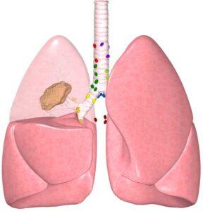 Parestesia post operatoria
