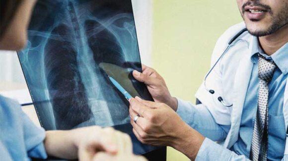 tutela malati cancro polmone